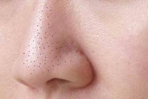 Utilize-cola-escolar-para-remover-os-cravos-do-nariz-euusoeadoro